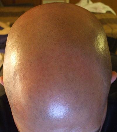 Tip para una cabeza calva brillante