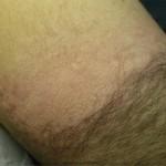Las mejores formas de eliminar el vello de los antebrazos