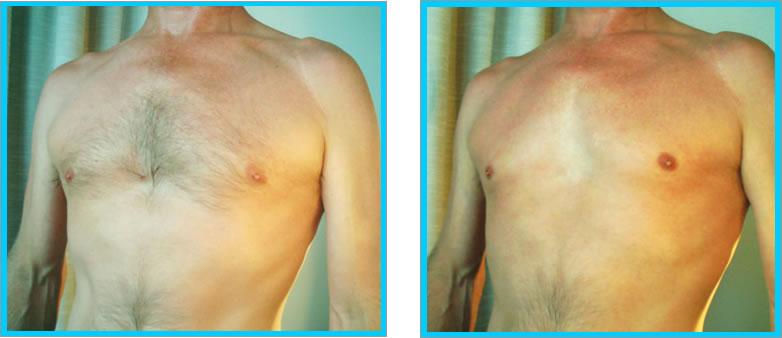 crema depilazione definitiva