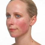 Tratamientos naturales para el enrojecimiento de la piel