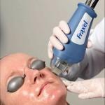 Tratamientos para la piel con Láser Fraxel: una buena opción
