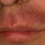 Cómo prevenir la irritación al afeitarse– Parte 1