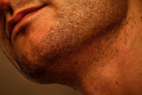 Depilación definitiva de la barba debido a la irritación