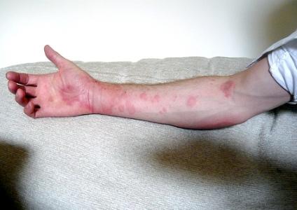 Cómo evitar la urticaria tras la depilación láser